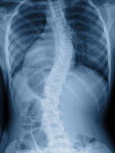 Skoliose Skelett Röntgenbild
